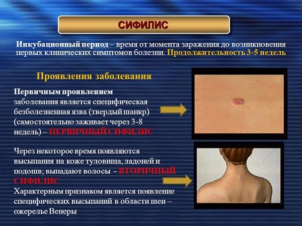 Инкубационный период сифилиса - симптомы, причины и проявление