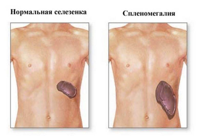 Селезенка болит у беременных 6