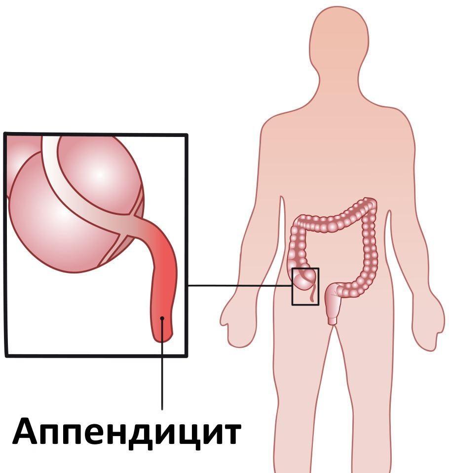Где находится аппендицит у беременных