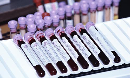 Анализ крови на хромосомную патологию