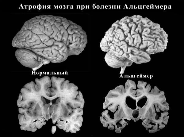 Атрофия мозга при болезни