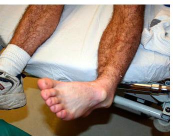 Вывих голеностопа - фото