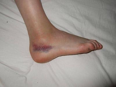 Вывих ноги с гематомой