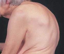 Выраженный кифоз в разгаре остеопороза