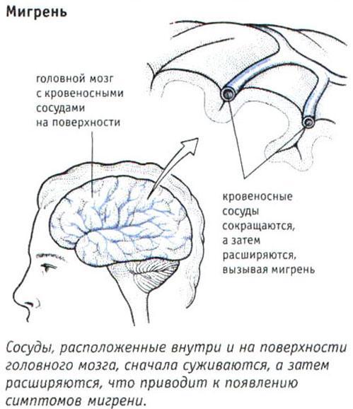 Задний шейный спастический синдром