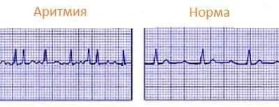 Нарушение сердечного ритма или аритмия сердца
