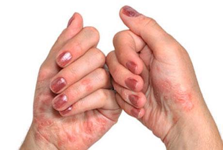 На фото поражение кожи псориазов и полиартрит