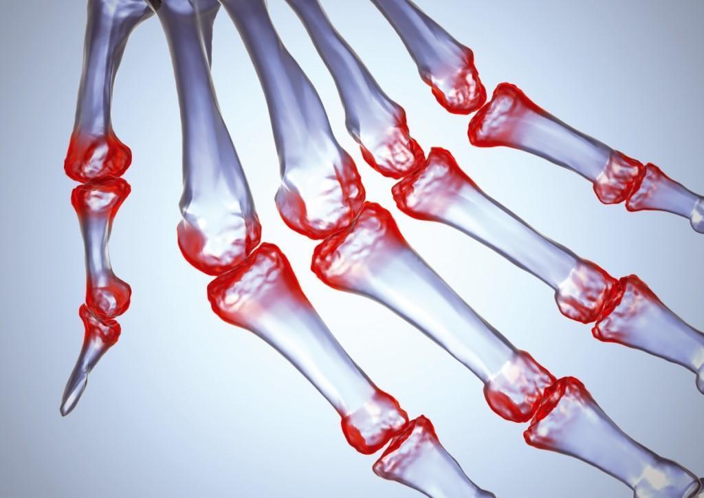 Остеоартроз (полиостеоартроз)