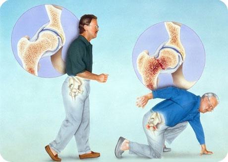 Остеопороз становится причиной частых переломов костей