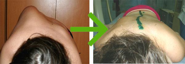 Пациент до и после операции