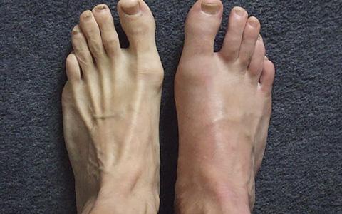 Подагрический артрит - фото