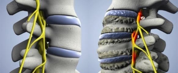 Позвонки в норме и пораженные артрозом
