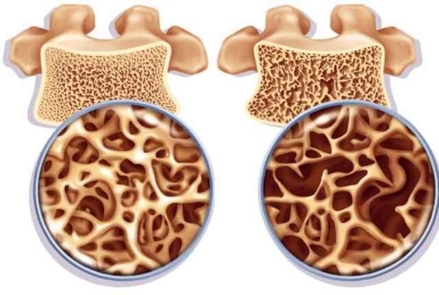 Позвонки, схема поражения остеопорозом
