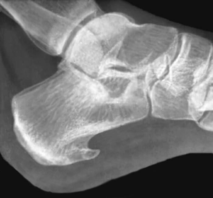 При шпоре пациенты невольно стремятся разгрузить пяточную область и меньше ступать на пораженную стопу