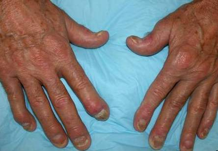 Псориатический полиартрит
