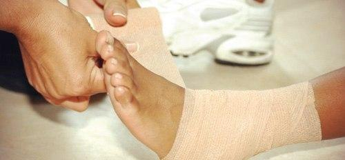 Растяжение связок стопы лечение