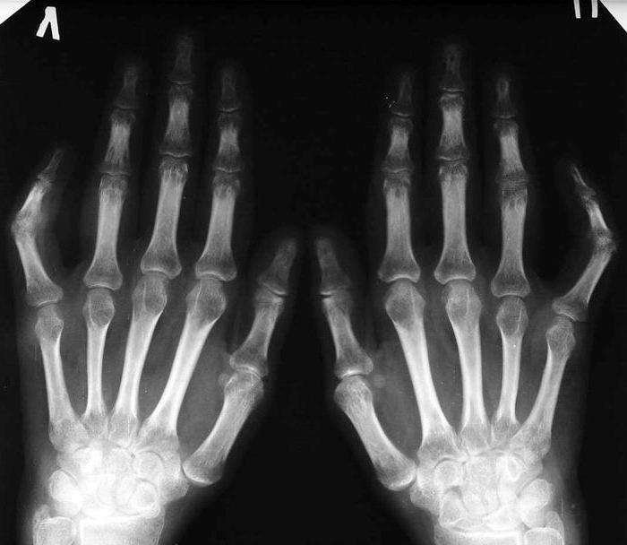 Ревматоидный артрит на рентгеновском снимке