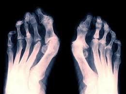 Рентгеновский снимок пациента с ревматоидным артритом