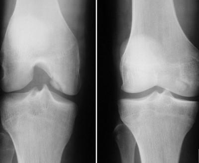 Рентген снимок коленного сустава