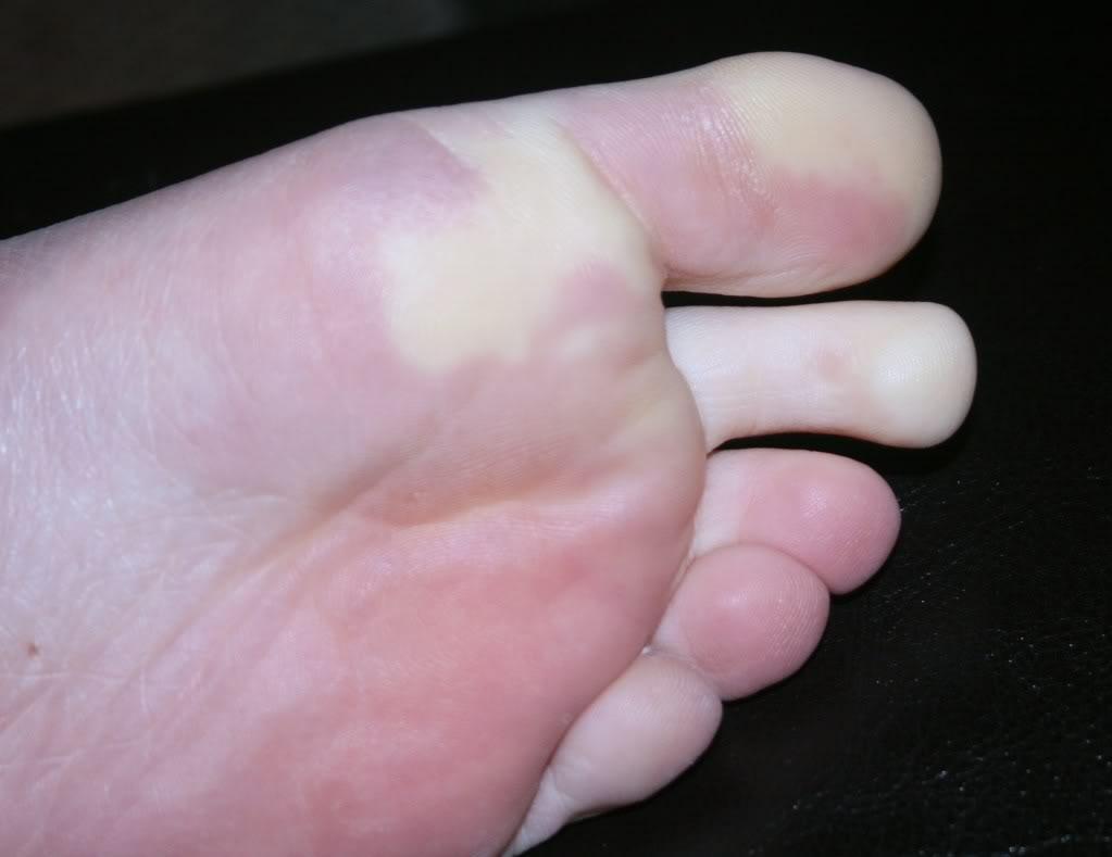 Синдром Рейно (синдром холодных рук и ног)