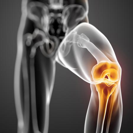 Сустав колена травмируется из-за чрезмерных нагрузок