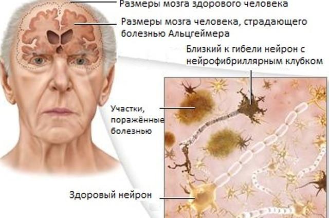 Схема поражения головного мозга
