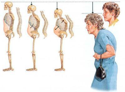 Так постепенно изменяется осанка при остеопорозе