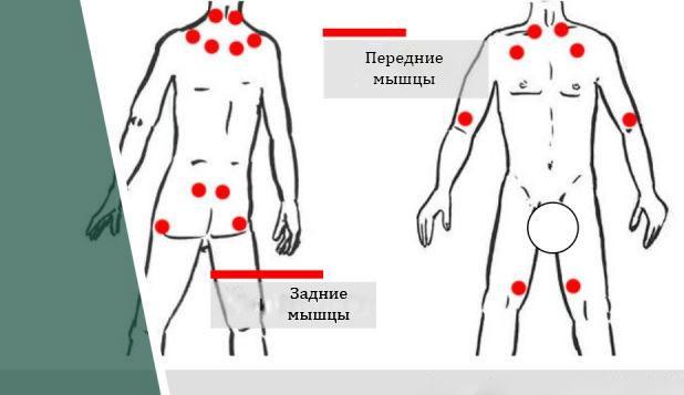 Фибромиалгии мышц