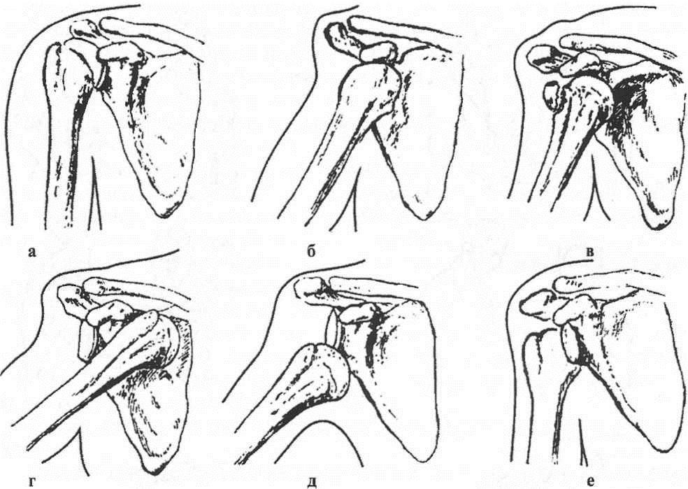 Классификация вывихов плеча по Каплану: а — нормальный сустав; б — подклювовидный вывих; в — подклювовидный вывих с отрывом большого бугорка плечевой кости; г — подключичный; д — подкрыльцовый; е — задний