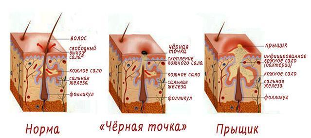 Схема кожных высыпаний
