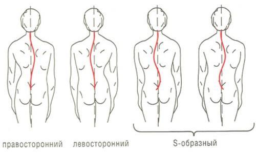 Сколиоз 2 степени реферат по физкультуре