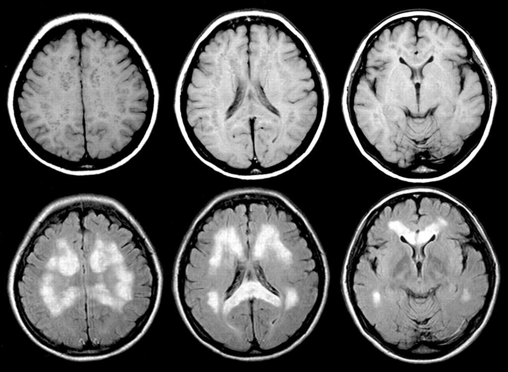 Болезнь Паркинсона на МРТ