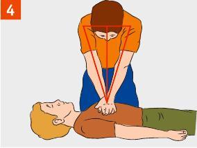 Вертикально нажимаем на грудную клетку, продавливая ее на 3 см, в минуту делаем 101-112 надавливаний