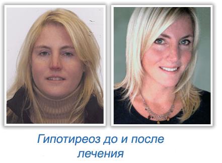 Гипотиреоз до и после лечения