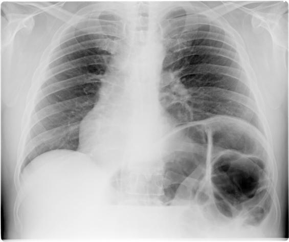 Диафрагмальная грыжа на рентгеновском снимке
