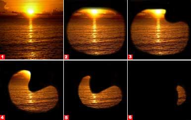 Динамика изменения поля зрения при глаукоме
