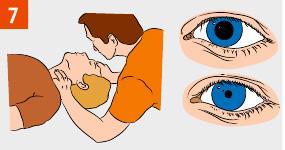 Контролируем пульс и реакцию зрачка