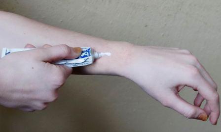 На фото нанесение препарата на руки при экземе