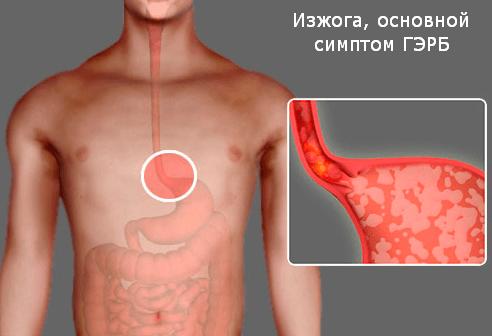 Основной симптом ГЭРБ