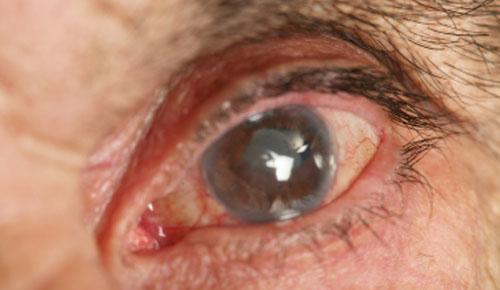 Острая закрытоугольная глаукома