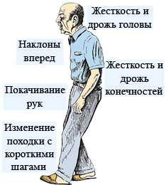 Первые признаки болезни Паркинсона