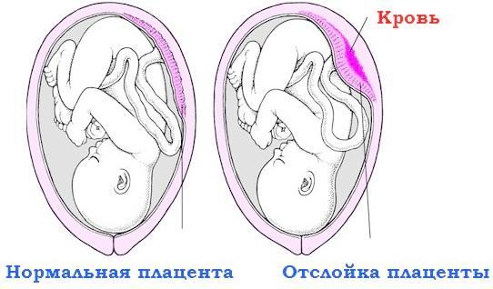 Признаки отслойки плаценты