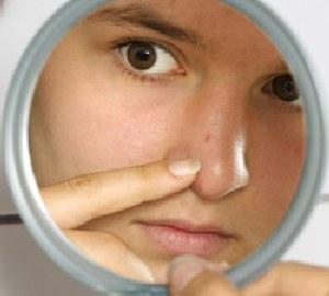 Прыщи в носу имеют свойство рецедивировать