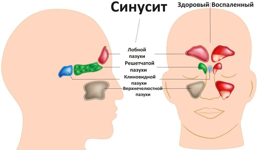 Синусит – это воспаление, которое сопровождается не только слизистыми выделениями, но и болью на лице, температурой