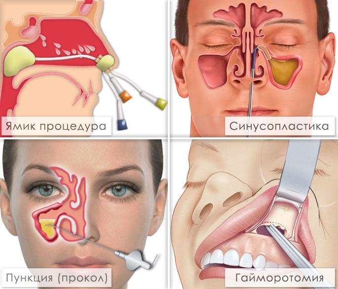 Методики лечения гайморита