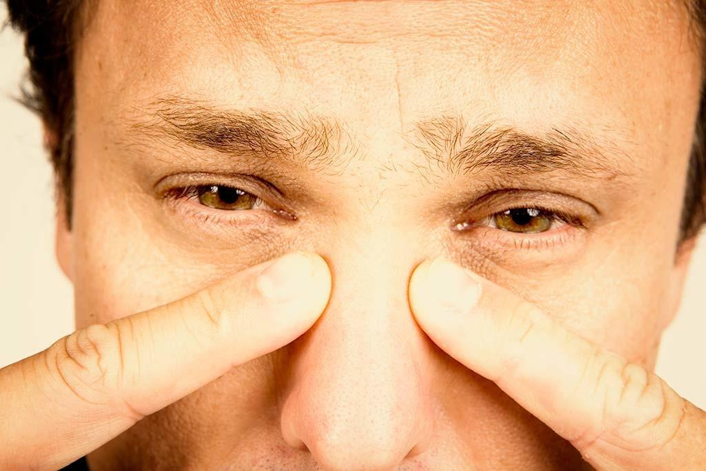 Гайморит - заразное заболевание