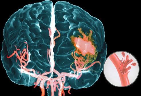 Клиника геморрагического инсульта