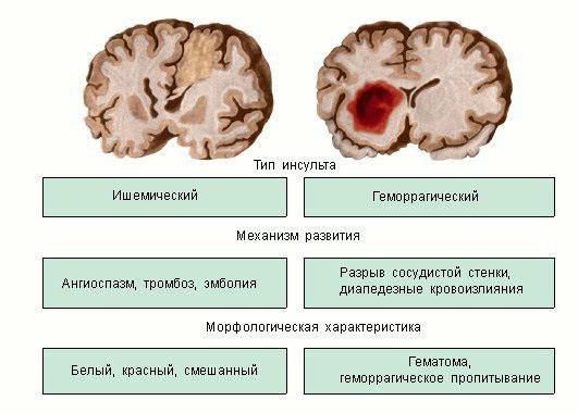 Типы инсульта и их характеристика