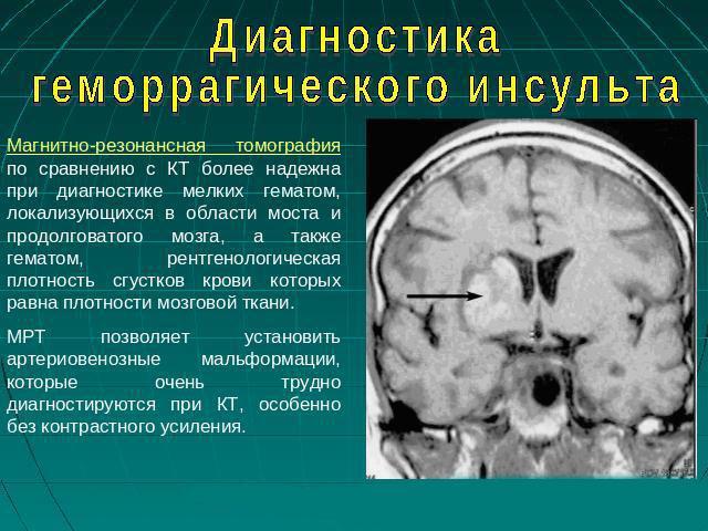 Диагностика геморрагического инсульта