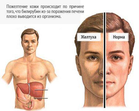 Желтый оттенок кожи - характерный признак гепатита С